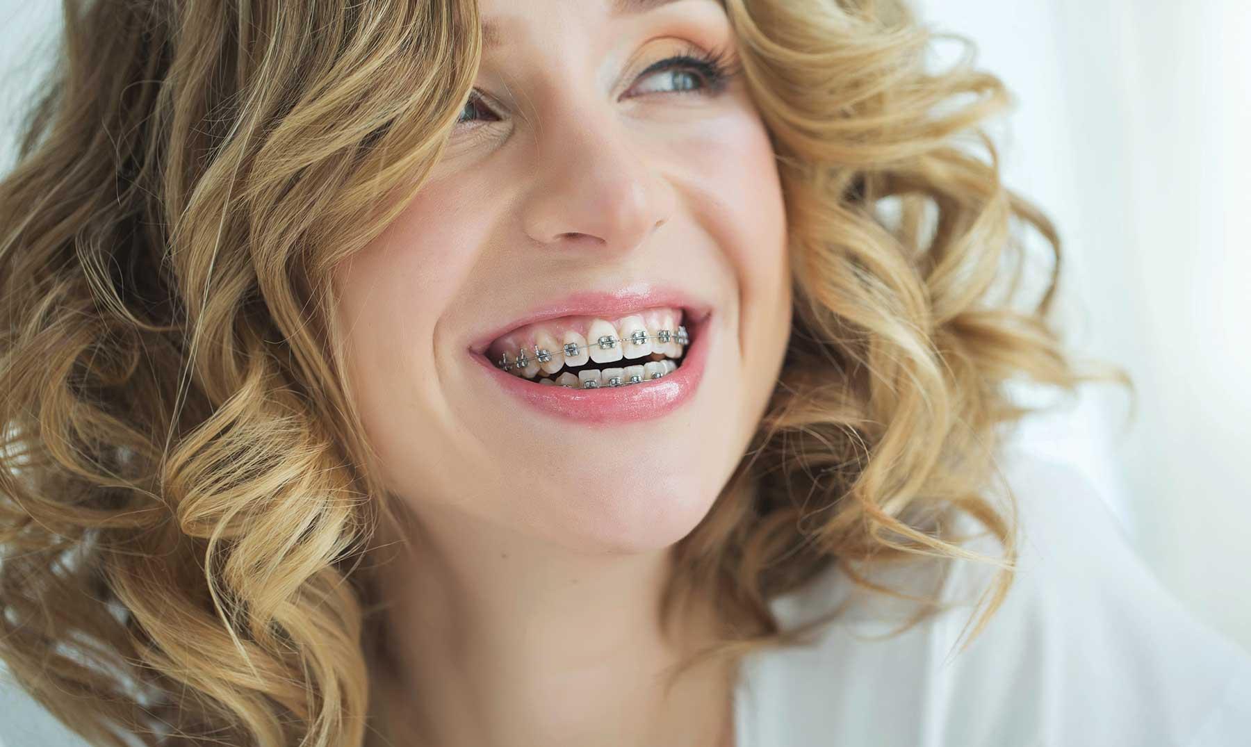 ¿Es compatible usar ortodoncia durante el embarazo?